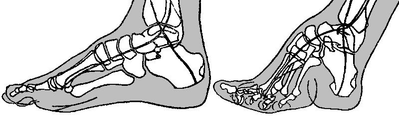 voetbinden