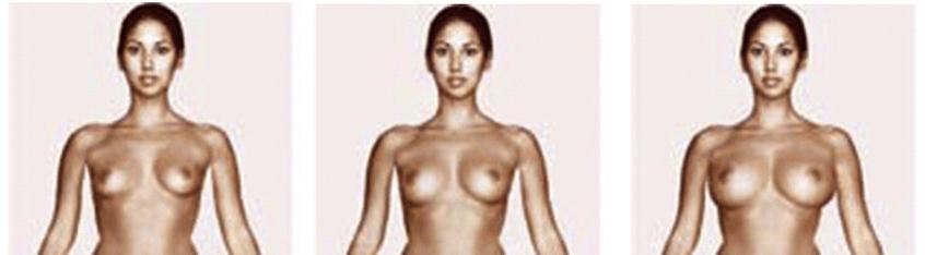 vrouwen borsten
